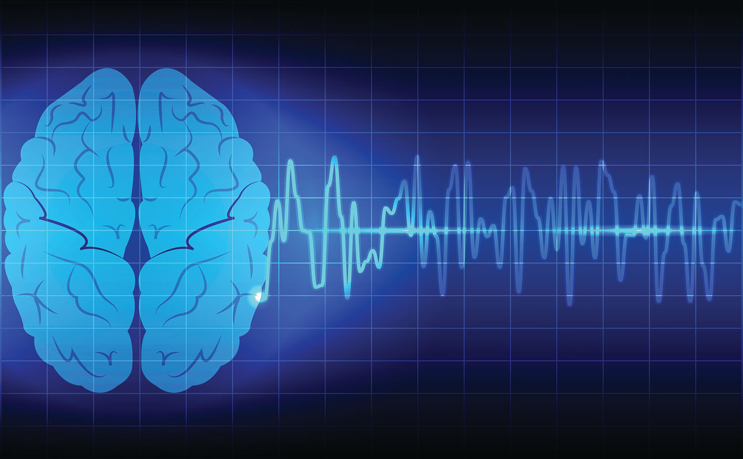 image of a brain with ekg in the background