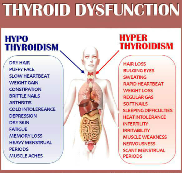 Thyroid dysfuntion comparison